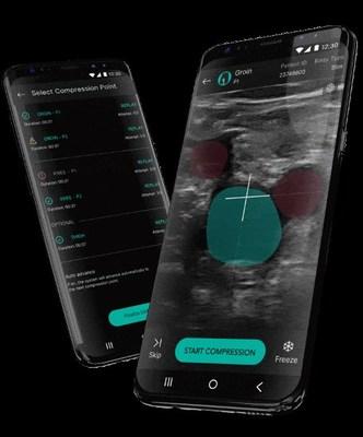 ThinkSono AutoDVT App on a smartphone